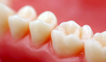 conservativa endodonzia protesi-evidenti.it