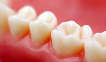 conservativa endodonzia protesi-evidenti.it