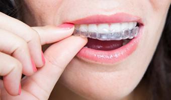 invisalign apparecchio quasi invisibile ortodonzia evidenti.it